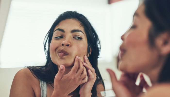 the-unexpected-hack-that-can-make-a-pimple-less-red-in-60-seconds