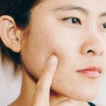 The Strange Reasons You May Be Getting Acne Out Of The Blue