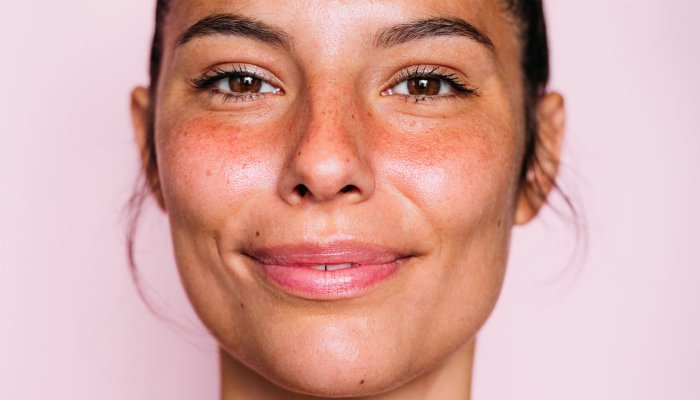 this-all-star-antioxidant-can-help-your-skin's-lipid-layer-too